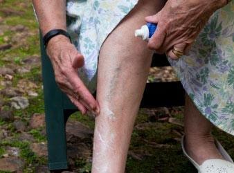 银屑病治疗后留下色素还需继续涂药么?