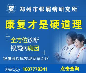 郑州牛皮癣治疗最好医院