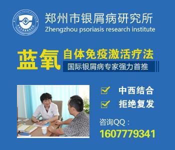 郑州牛皮癣治疗最好的医院