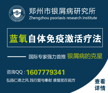 郑州银屑病研究院治疗的怎么样