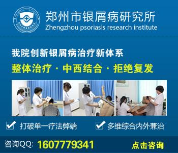 郑州银屑病专科医院在哪