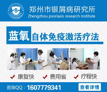 郑州哪个医院治疗牛皮癣好