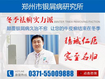 郑州治疗牛皮癣哪家医院最好
