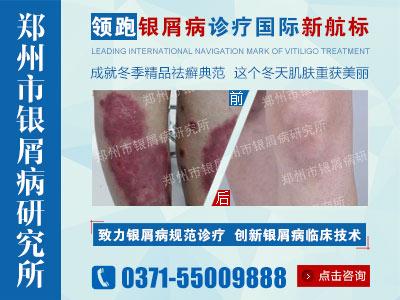 郑州哪个医院治疗银屑病治得好